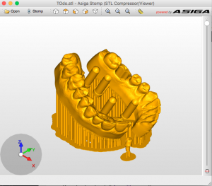 Compressing big STL files for 3D printing | Microlay Dental
