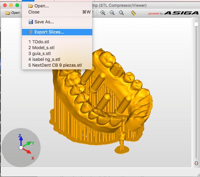 Microlay Dental 3D Printers